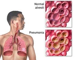 Воспаление легких – симптомы заболевания