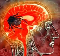 Вирусный энцефалит