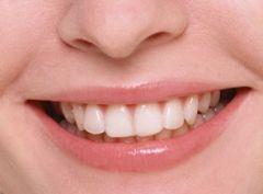 Рейтинг самой вредной для зубов еды